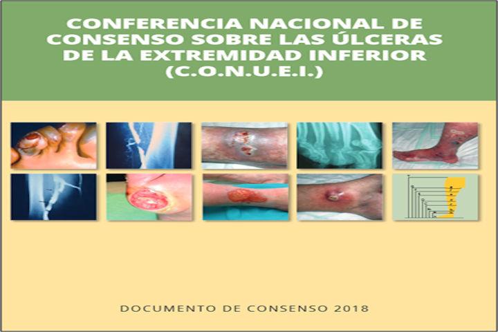 Conferencia nacional de consenso sobre las úlceras de la extremidad inferior