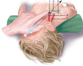 Enfermería en los accesos vasculares en el paciente pediátrico y neonatal