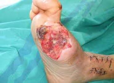 Heridas vasculares