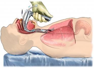 Manejo de la vía aérea. Intubación y traqueostomía normal y dificultosa