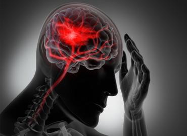 Enfermedades cerebrovasculares. Ictus, manejo y cuidados específicos y tratamiento